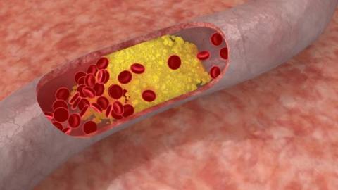 Повышенный холестерин к какому врачу обратиться