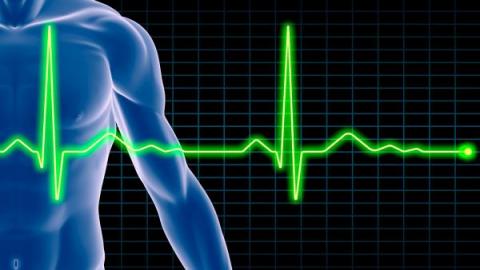 Синусовый ритм сердца