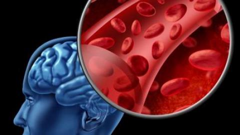 Замедленное кровообращение мозга