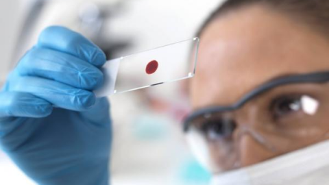Исследование крови на ХГЧ