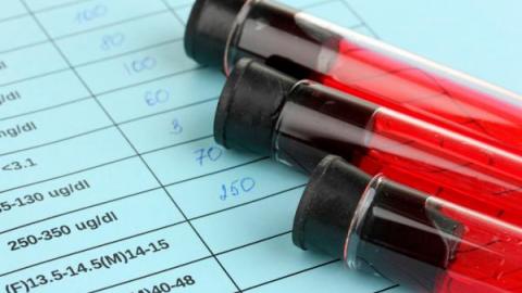 Результаты анализа крови