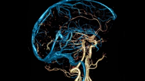 Болезнь головного мозга