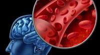 Кровообращение в мозге