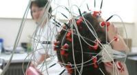 Реоэнцефалографией сосудов мозга