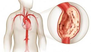 Расслоения аорты